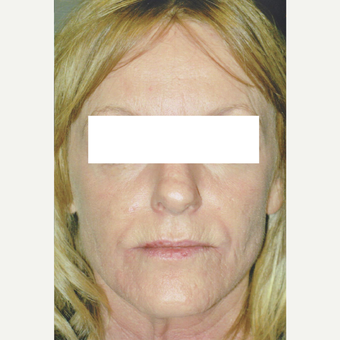 52 year old woman treated with Fraxel 1927, Botox, Fillers after 3055746