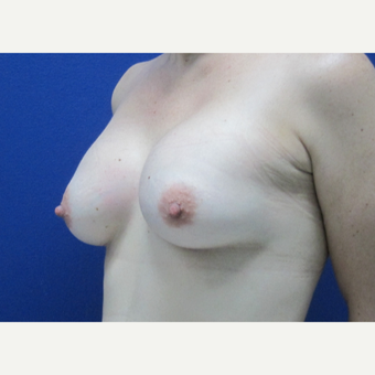 45-54 year old woman treated with Breast Augmentation after 3695034