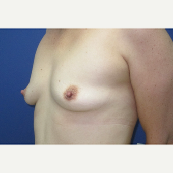 45-54 year old woman treated with Breast Augmentation before 3695034