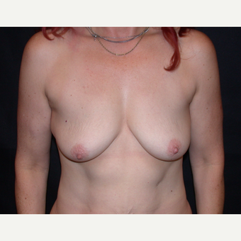 45-54 year old woman treated with Breast Augmentation before 3345037