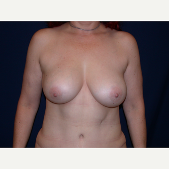 45-54 year old woman treated with Breast Augmentation after 3345037