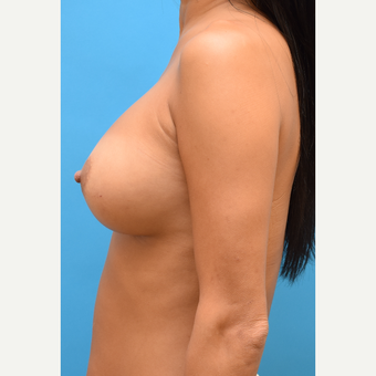 35-44 year old woman treated with Breast Implants after 3259182