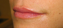 Lip Augmentation after 976122