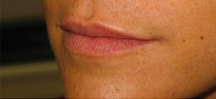 Lip Augmentation before 976122