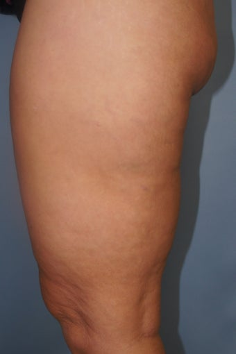 43 year old treated with Cellulaze of thighs after 953980
