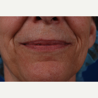 45-54 year old woman treated with Laser Resurfacing before 3027208
