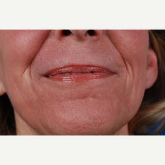 45-54 year old woman treated with Laser Resurfacing after 3027208