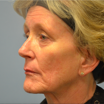 65-74 year old woman treated with Sculptra after 2448957