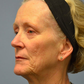 65-74 year old woman treated with Sculptra before 2448957