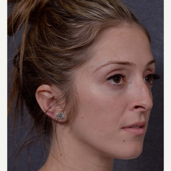 25-34 year old woman treated with Rhinoplasty before 3844473