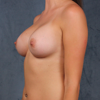 26 year old female wants full breast augmentation with silicone gel implants. after 3045163