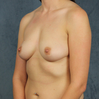 26 year old female wants full breast augmentation with silicone gel implants. before 3045163