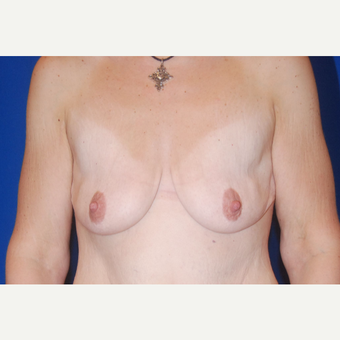 25-34 year old woman treated with Breast Augmentation before 3695862