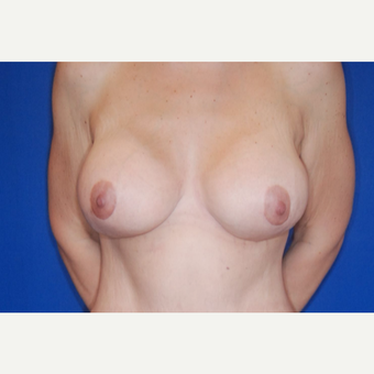 25-34 year old woman treated with Breast Augmentation after 3695862