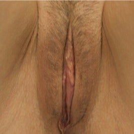 Labiaplasty after 1895497