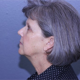 55-64 year old woman treated with Lifestyle Lift before 2029412