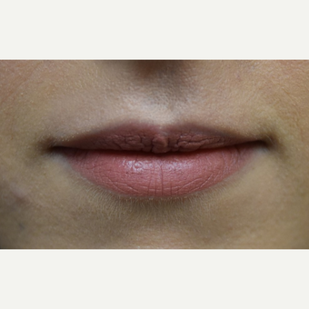 18-24 year old woman treated with Lip Augmentation before 3854689