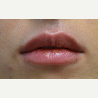 18-24 year old woman treated with Lip Augmentation after 3854689