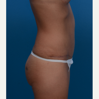 36 year old woman after 3 C-sections treated with Tummy Tuck for an improved abdominal shape. after 3280530