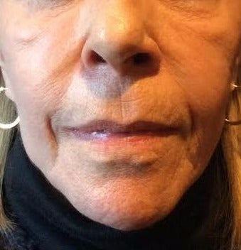 65-74 year old woman treated with Liquid Facelift before 3220477