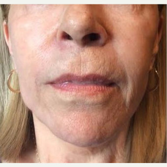 65-74 year old woman treated with Liquid Facelift after 3220477