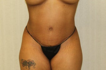 25-34 year old woman treated with Tummy Tuck after 3286207