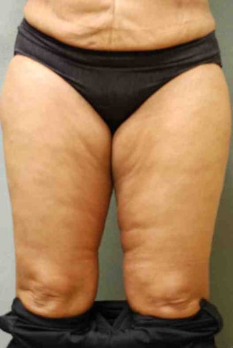 49 Year Old Female Smart Liposuction  Performed for Excess Fat in the Thighs before 1046467