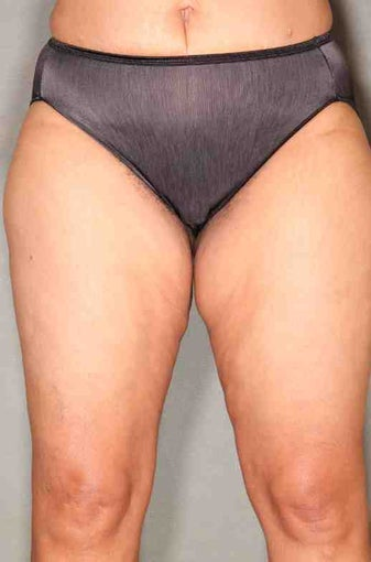 49 Year Old Female Smart Liposuction  Performed for Excess Fat in the Thighs after 1046467