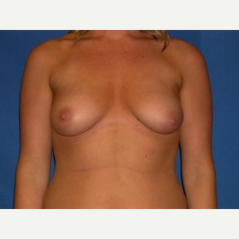 25-34 year old woman treated with Breast Lift with Implants before 3009121