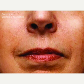 Bellafill Permanent Solution for Nasolabial Folds after 2988675