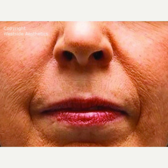Bellafill Permanent Solution for Nasolabial Folds before 2988675