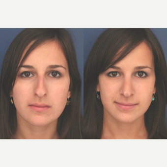 25-34 year old woman treated with Rhinoplasty after 3699005