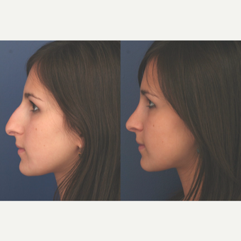 25-34 year old woman treated with Rhinoplasty before 3699005