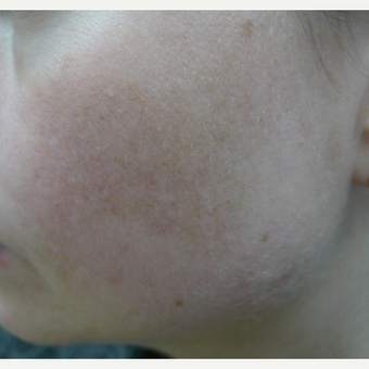 Melasma, lasers and creams after 3260222