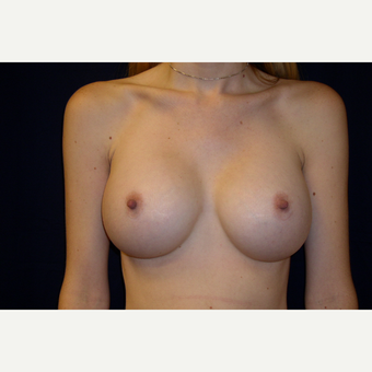 18-24 year old woman treated with Breast Augmentation after 3776306