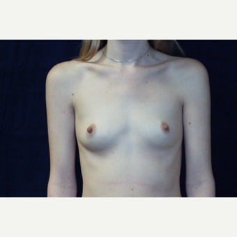 18-24 year old woman treated with Breast Augmentation before 3776306