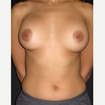 25-34 year old woman treated with Breast Augmentation after 3104024