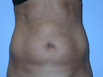 Abdominoplasty before 117543