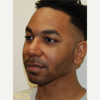25-34 year old man treated with African American Rhinoplasty after 2980770