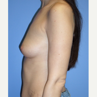 35-44 year old woman treated with Breast Implants before 3370242