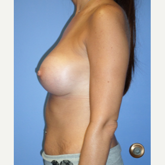 35-44 year old woman treated with Breast Implants after 3370242