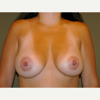 35-44 year old woman treated with Breast Augmentation after 3715301