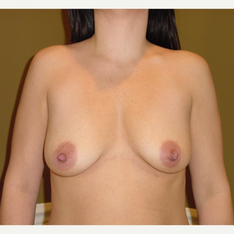 35-44 year old woman treated with Breast Augmentation before 3715301