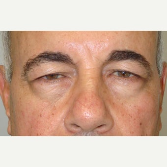 58 year old man treated with Ptosis Surgery before 1634866