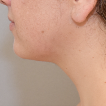 36 year old woman treated with Liposuction of neck after 3259459