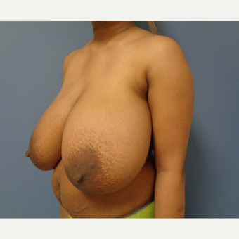 25-34 year old woman treated with Breast Reduction before 3747775