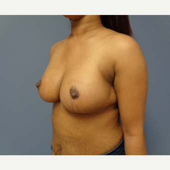 25-34 year old woman treated with Breast Reduction after 3747775