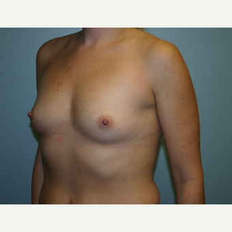 Breast Augmentation before 3562104