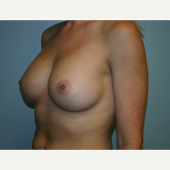 Breast Augmentation after 3562104