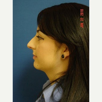 25-34 year old woman treated with Rhinoplasty